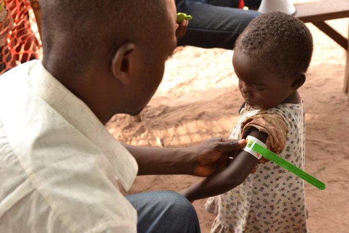 Epidemia di morbillo: migliaia di bambini muoiono in Congo (di E. Angilella, M. Purpura)