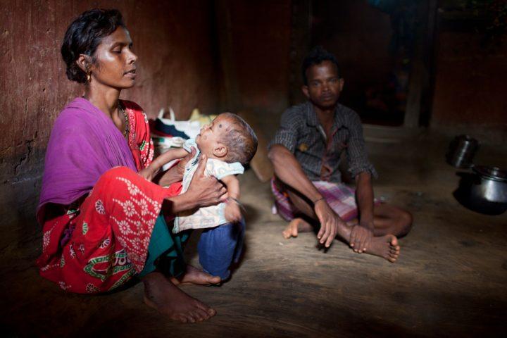 MEDICI SENZA FRONTIERE IN INDIA: HIV-AIDS (di G. Eula, N. Scotto, G. Rizzi, H.M. Singh)