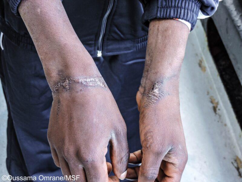 """Centri di detenzione in Libia: Non """"TRATTAteci"""" come animali (di R.M. Catanzaro, R. Fontana, S. Landolina, M.A. Lo Piccolo)"""